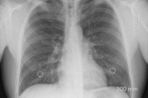 projekat ranog otkrivanja raka pluća